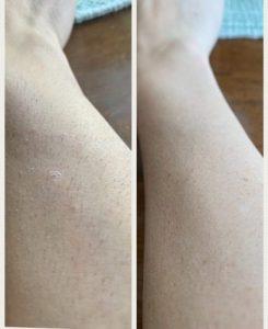 SilkyLife™ Lézeres szőrtelenítő készülék photo review